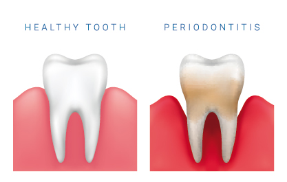 Healthy tooth and Periodontics