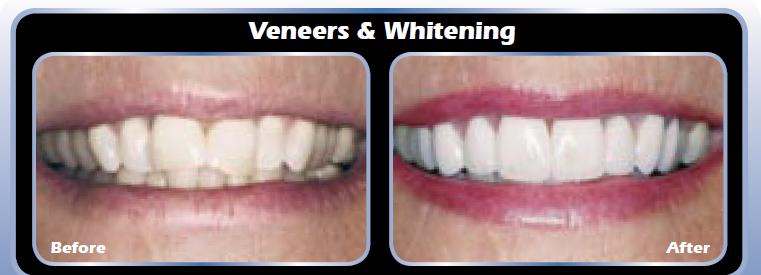 Veneer & Tooth Whitening