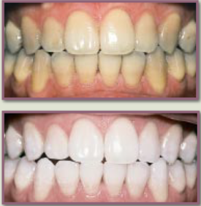 difference between - before and after teeth whitening